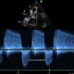 Poreumatická kombinovaná aortálna chyba