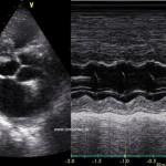 Hypertrofická kardiomyopatia